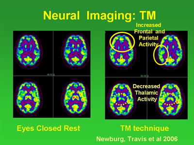 neural imaging